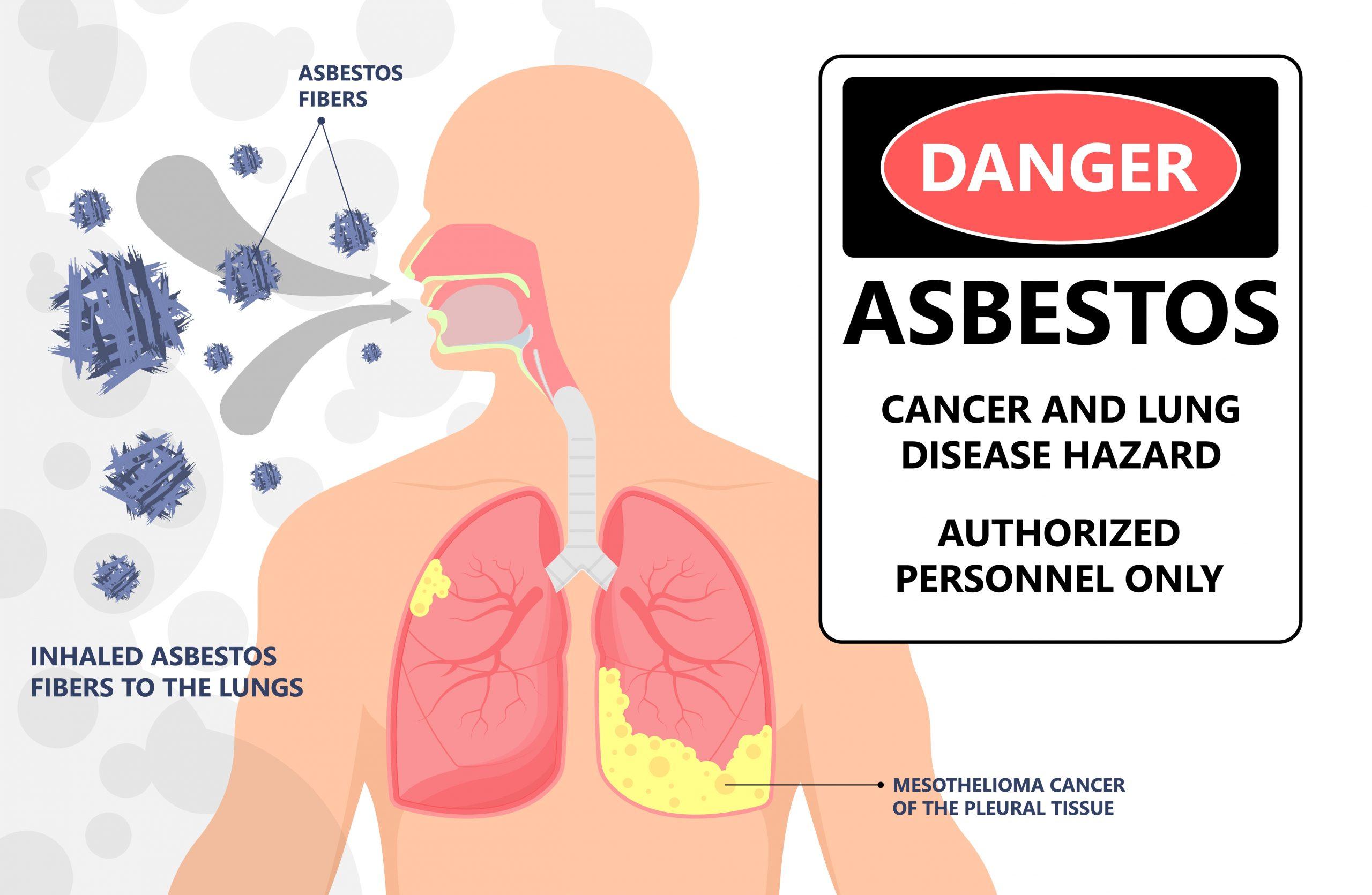 Effects of Asbestos Exposure
